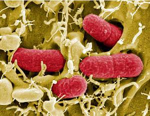 Copyright: Manfred Rohde, Helmholtz-Zentrum für Infektionsforschung (HZI)