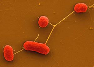 Bild: Manfred Rohde, Helmholtz-Zentrum für Infektionsforschung (HZI)