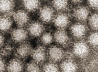 Noroviren